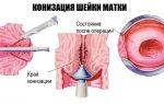 Рак шейки матки: как проходит операция?