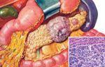 Проявление рака поджелудочной железы. фото