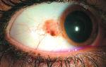 Как выглядит рак глаза? фото и прогноз