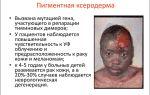 Лечение рака в россии в центре томотерапии «сакнур»
