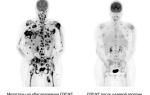 Лечение меланомы интерфероном. за и против