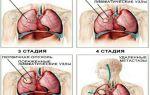 Рак легких: сколько можно прожить?