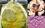 Эмболизация миомы матки: преимущества, осложнения, цена