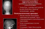 Миелома костей: описание и прогноз
