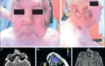 Рак головы – симптомы, лечение, восстановление