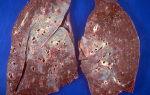 Саркоидоз легких переходит в рак?