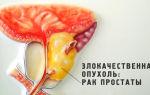 Рецидив рака простаты. причины, признаки, лечение и прогноз