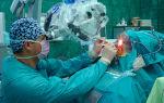 Операция по удалению менингиомы: прогноз, осложнения