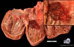 Опухоль сердца: фото, лечение. сколько осталось жить?