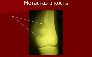 Метастазы в костях: продолжительность жизни
