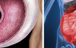 Рак желудка с метастазами: сколько живут?