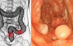 Рак кишечника – операция. цены и последствия