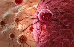 Опухолевые клетки. как уничтожить опухолевые клетки рака?