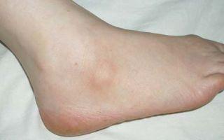 Фиброма на ноге: что делать, как избавиться?