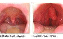 Опухоль миндалин: фото и описание