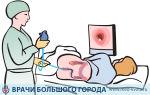 Рак слепой кишки: прогноз и выживаемость по стадиям